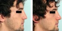 Rinoplastia en el Centro de Cirugía Nasal Dr. fernando Monsalve