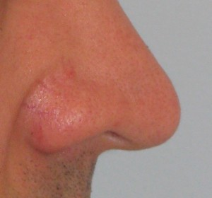 angulo naso labial