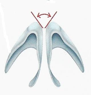 Cartilagos alares