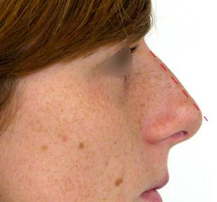 nariz previo a una rinoplastia