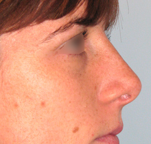 nariz posterior a una rinoplastia