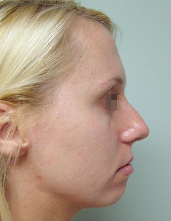 ejemplo imagen de perfil