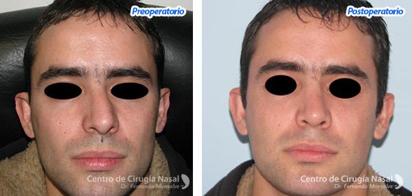 Craneolaterorrinia - Centro de cirugía Nasal Dr. Monsalve