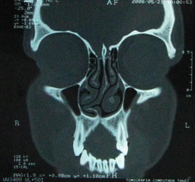 Desviación Septal - Centro de Cirugía Nasal Dr. Monsalve