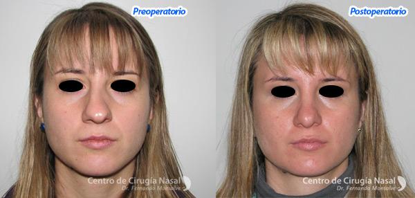 desviacion septal Centro Cirugía Nasal Dr. Monsalve