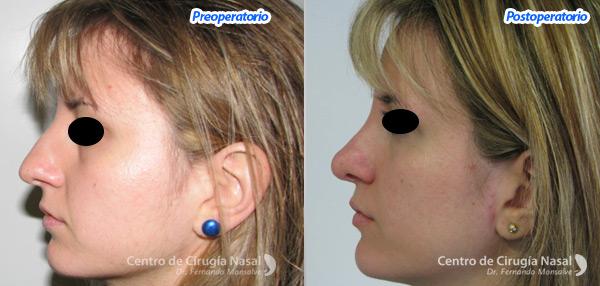 desviacion-septal Centro de Cirugía Nasal Dr. Monsalve
