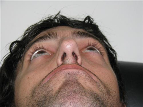 nariz tenza - rinoseptum funcional