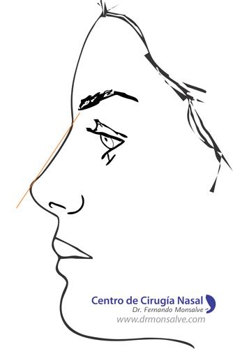 El dorse de la nariz debe estar de 1 a 2 mm por detrás de la línea imaginaria que va desde el radix a la punta