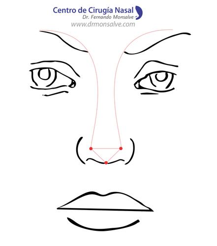 rinoplastia, nariz perfecta respetando simetrias de frente