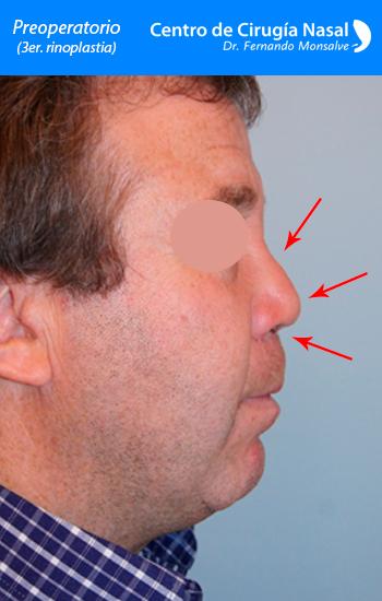 preoperatorio rinoplastia secundaria