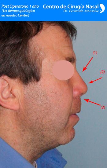 rinoplastia secundaria 1 año primer tiempo quirúrgico