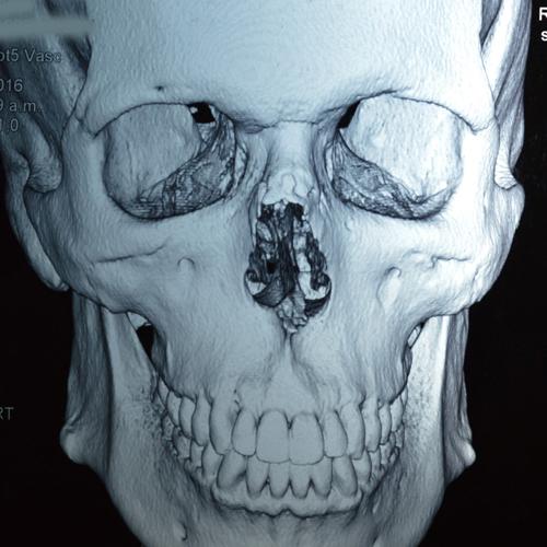 rinoplastia-3d-monsalve-7