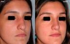 antes-despues-rinoplastia-primaria-3cuarto-caso460