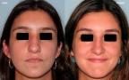 antes-despues-rinoplastia-primaria-frente-caso460
