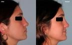 antes-despues-rinoplastia-primaria-perfil-caso460