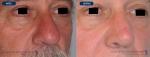 rinoplastias-antes-despues-nariz-hiper-proyectada-3cuartosl