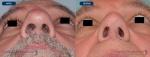 rinoplastias-antes-despues-nariz-hiper-proyectada-base