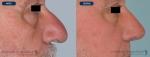 rinoplastias-antes-despues-nariz-hiper-proyectada-perfil