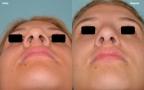 antes-despues-rinoplastia-primaria-giba-punta-bulbosa-base