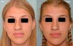 antes-despues-rinoplastia-primaria-giba-punta-bulbosa-frente