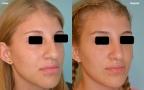antes-despues-rinoplastia-primaria-giba-punta-bulbosa-trescuartos