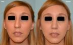 antes-despues-rinoplastia-primaria-frente-caso425