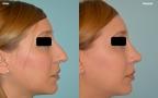 antes-despues-rinoplastia-primaria-perfil-caso425