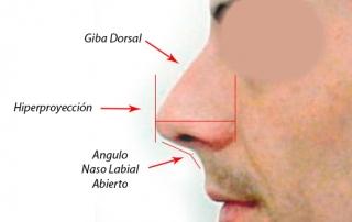 rinoplastia: detalles de giba dorsal, hiperproyección y angulo nasal