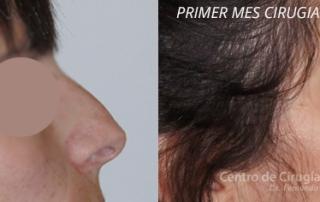 pre y post operatorio de una ciugía de nariz en el Centro de Cirugía Nasal Dr. Fernando Monsalve