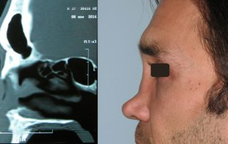 Cirugia reconstructiva nasal