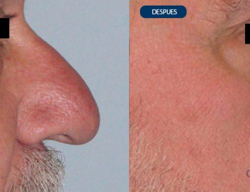 Rinoplastia en nariz grande híper proyectada con piel gruesa y base ancha