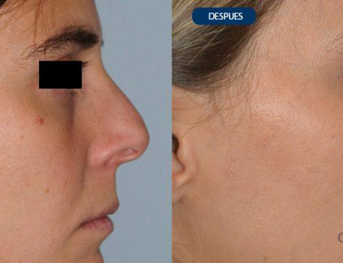 Deviación nasal y Giba dorsal