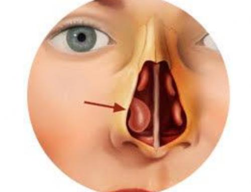 Hipertrofia de cornetes (cornetes aumentados de tamaño)